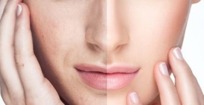 أفضل الحلول التجميلية لعلاج البقع الداكنة