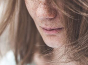البقع الداكنة: تقنيات الإخفاء التجميلية.