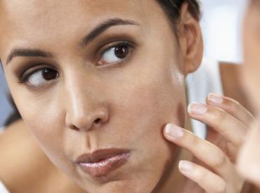 علاج العيوب والبثور والنقاط السوداء بطرق سهلة وسريعة