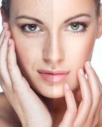 Taches brunes : les bonnes solutions cosmétiques