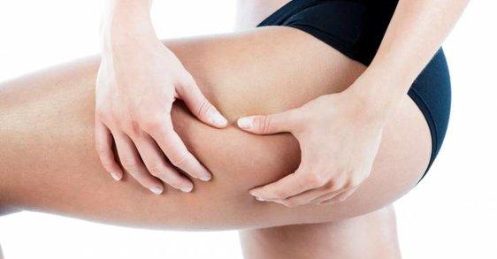 Quels sont les différents types de cellulites ?